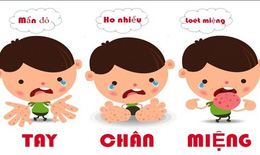 Ngừa biến chứng bệnh tay chân miệng