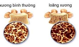 Thuốc loãng xương phải sử dụng lâu dài