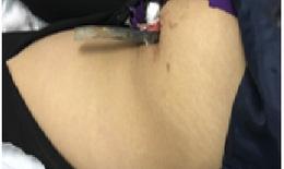 Nữ sinh đi xe đạp điện bị tai nạn do thanh sắt đâm thấu mông