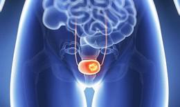 Triệu chứng ung thư bàng quang phụ nữ không nên bỏ qua