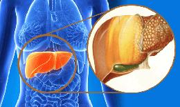 Gan nhiễm mỡ - bệnh phổ biến nhưng khó phát hiện