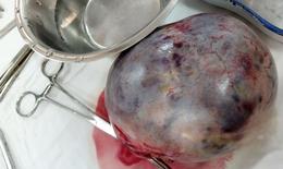 Đang mang thai 13 tuần, sản phụ phát hiện bị u nang buồng trứng xoắn, kích thước lớn