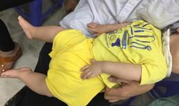 Quặn lòng bé 7 tháng tuổi dị tật bàn chân khoèo, trật khớp háng hai bên, viêm đa khớp bẩm sinh