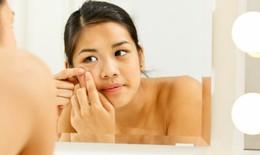 Muốn có làn da đẹp không tỳ vết đón Tết, tránh xa những thực phẩm này
