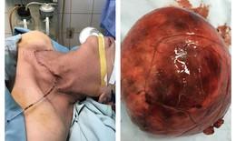 Giải thoát cho bệnh nhân lớn tuổi khỏi  khối bướu khổng lồ nặng gần 1kg