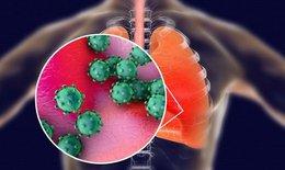 5 bài thuốc trị chứng hậu COVID-19