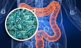Khắc phục rối loạn tiêu hóa do dùng thuốc kháng sinh thế nào?