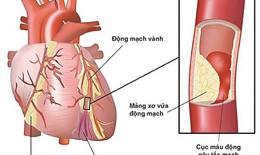 Lợi thế của thuốc acetaminophen đối với bệnh nhân nhồi máu cơ tim ST chênh lên