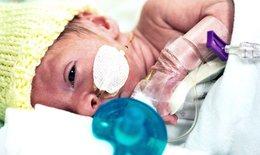 Phụ nữ mang thai nhiễm COVID-19 nặng có rủi ro sinh non cao