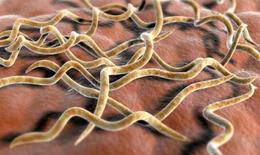 Phát hiện vi khuẩn liên quan đến hội chứng ruột kích thích
