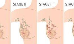 Phối hợp phẫu thuật và xạ trị cho bệnh nhân ung thư biểu mô tuyến vú không xâm lấn