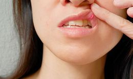 Tổn thương miệng, lòng bàn tay - triệu chứng mới của COVID-19