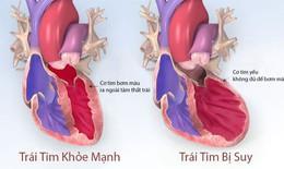 Thuốc dapagliflozin có thể làm giảm các biến cố suy tim