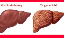 Tác dụng phụ nghiêm trọng khi dùng albumin ở bệnh nhân xơ gan mất bù