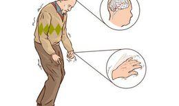 Liệu pháp mới giúp cải thiện chất lượng sống cho bệnh nhân Parkinson