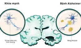 Nghiên cứu vắc-xin chống lại bệnh Alzheimer