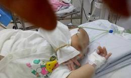 Mẹ sợ lây COVID-19 khiến bé 24 tháng tuổi viêm phổi nặng