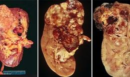 Mách bạn nhận biết sớm ung thư thận