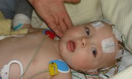 Xuất huyết não do thiếu vitamin K ở trẻ sơ sinh