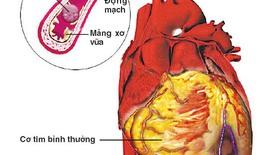 Ai dễ mắc bệnh mạch vành?