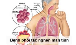 Phòng ngừa nguy cơ cho người bệnh phổi tắc nghẽn mạn tính trong đại dịch