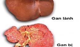 Những điều cần làm ngay để tránh ung thư gan
