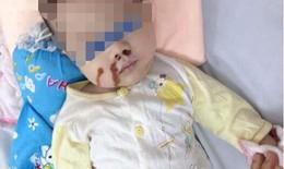 Dì cẩu thả, mẹ vô ý khiến bé 4 tháng tuổi nhập viện cấp cứu