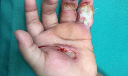 Một phút bất cẩn của người lớn khiến bé 1 tuổi nát tay vì điện giật