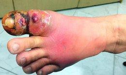 Cắt khóe móng chân tại nhà, một phụ nữ bị hoại tử nhiễm trùng nặng bàn chân