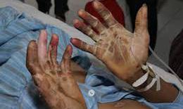 Sơn La: Một người tử vong nghi do nhiễm liên cầu lợn