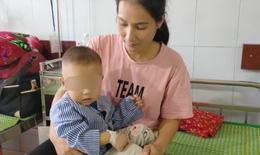 BVĐK Tuyên Quang: Nội soi gây mê gắp dị vật thực quản cho bé 21 tháng tuổi