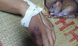 Cao Bằng, 1 người nghi mắc bệnh dịch hạch