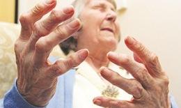 Viêm khớp dạng thấp chữa thế nào?