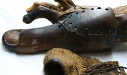 Những bộ phận cơ thể giả đầu tiên trong lịch sử
