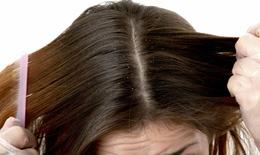Da đầu nhiều gầu, chữa cách nào?