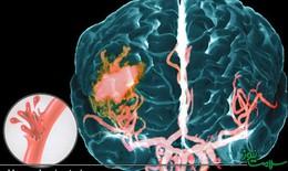 Bệnh mạch máu dạng bột và nguy cơ đột quỵ