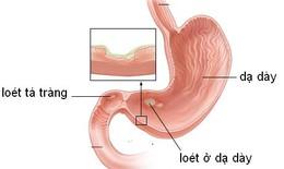 Nguyên nhân loét dạ dày - tá tràng