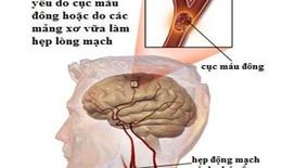 Bệnh mạch máu não:  Phòng ngừa từ các yếu tố nguy cơ