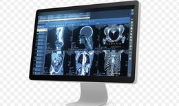 TP.HCM: Ứng dụng các đề tài nghiên cứu khoa học vào bệnh viện