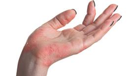 Điều trị  bệnh vẩy nến