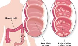 Nhận biết viêm loét đại trực tràng chảy máu
