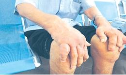 Bệnh gout ở người trẻ - chớ xem thường!