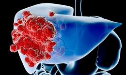 Nguy cơ ung thư gan với các dược liệu có chứa axít aristolochic!