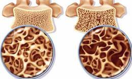 Cách nào khắc phục xốp xương do thuốc?