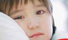 Đau mắt đỏ, đừng tự chữa  khiến bệnh lành tính bị biến chứng nặng