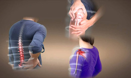 Bệnh về xương khớp: Khi nào áp dụng điều trị không dùng thuốc?