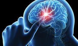 Nguy cơ gây đột quỵ do mỡ máu tăng cao