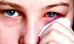 Đau mắt đỏ - Chớ coi thường