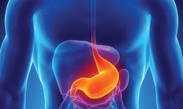 Phương pháp điều trị bệnh loét dạ dày - tá tràng