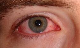 Chớ chủ quan với dị ứng mắt